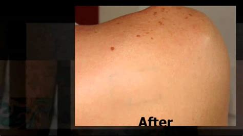 tattoo removal cream before and after removal