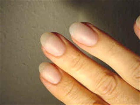 Fingernägel Lackieren Rechte Hand by Fingern 228 Gel