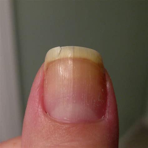 broken nail broken nail that thing i like
