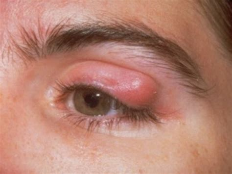 eye infection eyelid infection pictures causes treatment remedies