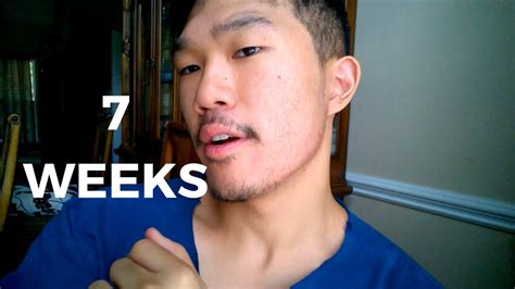 creatine 5 weeks minoxidil beard growth results 7 weeks using creatine