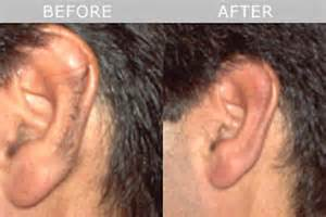 pictures of hair with from ear and in back permanent hair removal in nottingham total image salon