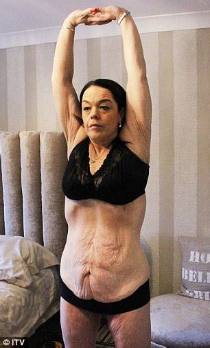 flabby skin 60 year female women having lisa riley s weight loss tummy tuck doubles