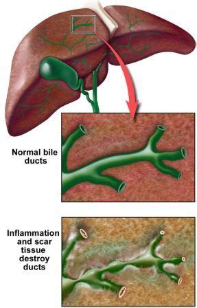 Sauna Detox For Primary Biliary Cirrhosis by Acute Cholangitis Causes Symptoms Diagnosis Treatment