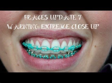 clear braces with color 1000 images about clear braces coloured ligatures on