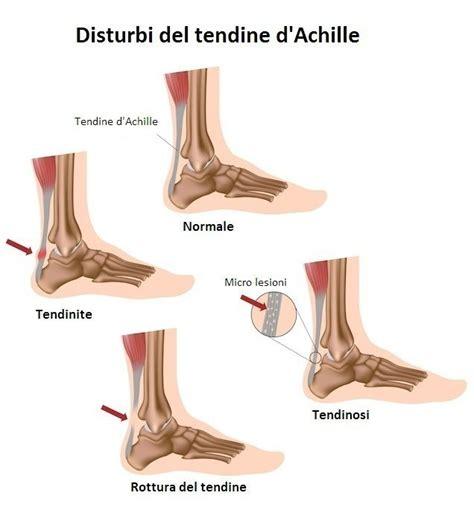dolore interno braccio sinistro tendinite al tendine d achille sintomi esercizi rimedi