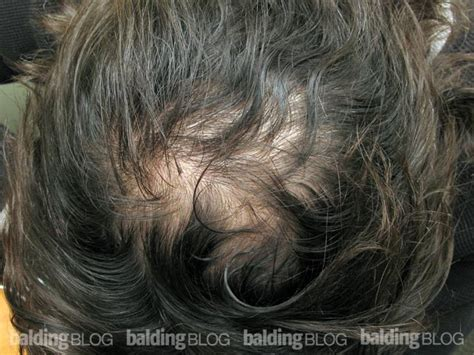 propecia finasteride hair loss medication bernstein remarkable result from 2 years on propecia with photos