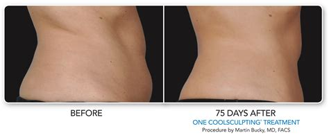 coolsculpting arms before and after pictures coolsculpting before after photos dermatology consultants