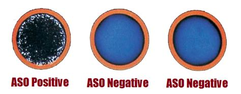 Rotator Widal anti streptolysin o aso test principle procedure interpretation and clinical significance