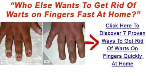 Can You Get Planters Warts On Your Fingers by How To Get Rid Of Plantar Warts