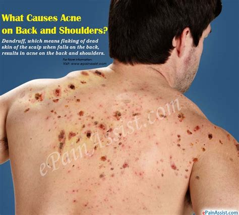 pimples on back what causes acne on back and shoulders how to get rid of it