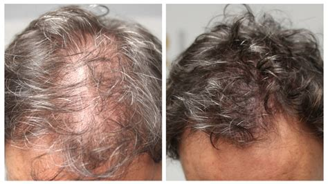 pics of scalp micropigmentation on people with long hair women s hair loss scalp micropigmentation for women by