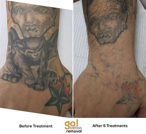 are tattoos supposed to scab 946 best removal in progress images on