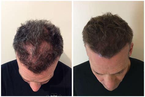 scalp micropigmentation to make hair ticker pictures scalp micro pigmentation results elite institute of