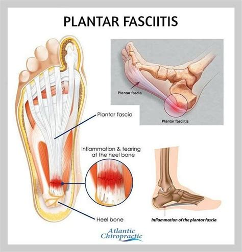 How To Cure Planters Fasciitis by 1000 Images About Plantar Fasciitis Treatment Exercises