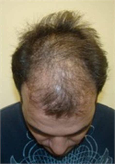 diffuse pattern hair loss diffuse pattern baldness thinning hair