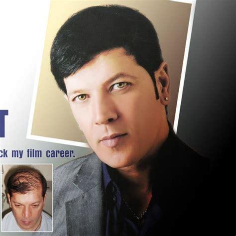 ranbir kapoor hair transplant celebrity hair transplant top hair transplant center