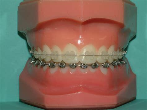 brackets in braces