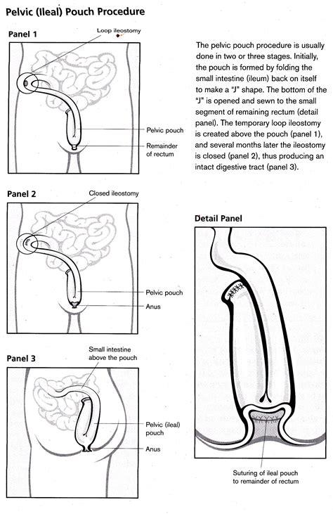 ileostomy diagram ileostomy diagram 28 images 301 moved permanently