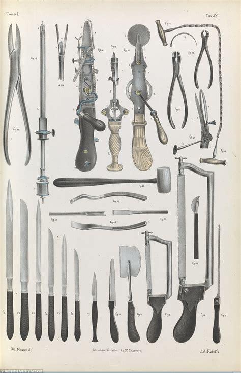 Gergaji Tulang gambar peralatan pembedahan pada abad ke 17 hingga 19