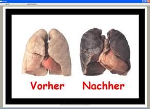 rauchen vorher nachher wie sieht eine lunge nach zweimonatigem rauchen aus