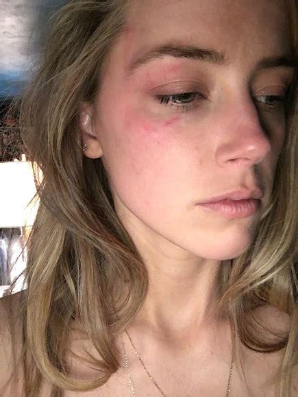 heard of amber heard and johnny depp photos show alleged domestic