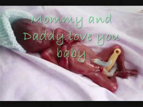 in memory of the premature babies lost to hypothyroid moms cervix opens prematurely videolike