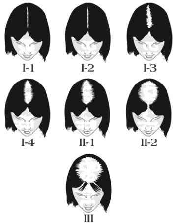 female pattern hair loss during pregnancy female pattern hair loss his hair clinic