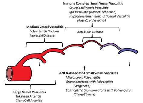 Vasculitis Foundation » Vasculitis