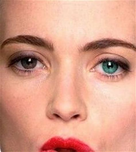 why does one person where a different color in 1000 images about heterochromia 184 180 168 on