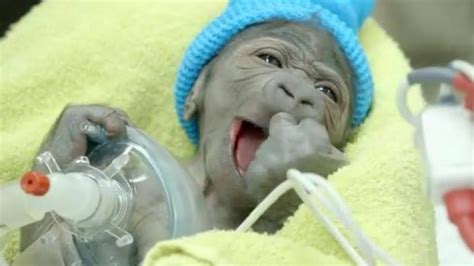 pneumonia after c section baby gorilla well enough to be released from hospital