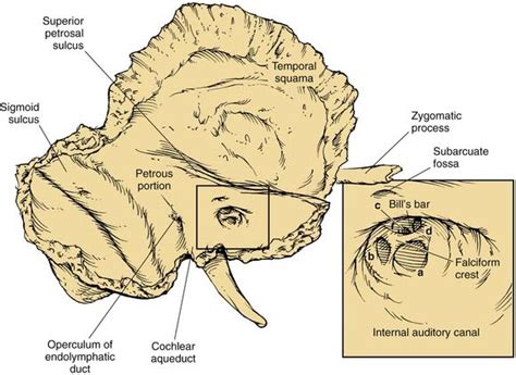 6 Auditory Bones by Anatomy Of The Temporal Bone External Ear And Middle Ear