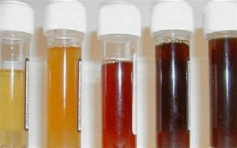 colored urine the color of urine reveals the condition of the