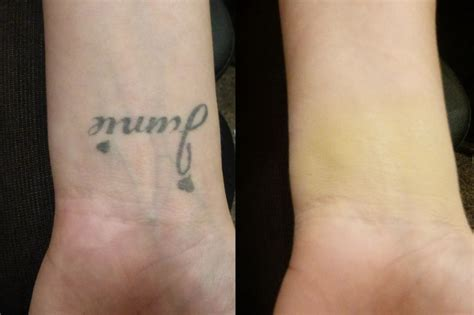tattoo ointment before bed 14 best images about skin camouflage exles on pinterest