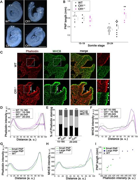 New Oversize Top Green Lonely Figure Desain Sederhana Cantik 31361 Ai rho kinase dependent actin turnover and actomyosin disassembly are necessary for mouse spinal