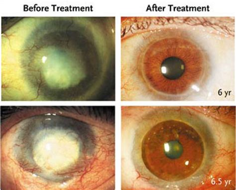Blind People Stick Stem Cell Treatment Lets Those With Scorched Corneas See