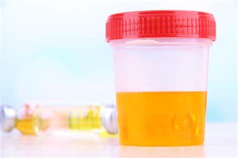 proteinuria o que prote 237 na na urina o que significa sintomas e tratamento