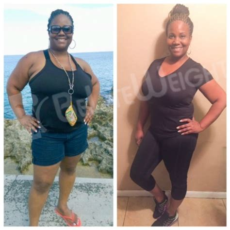 weight loss 6 weeks after gastric sleeve testimonials beliteweight