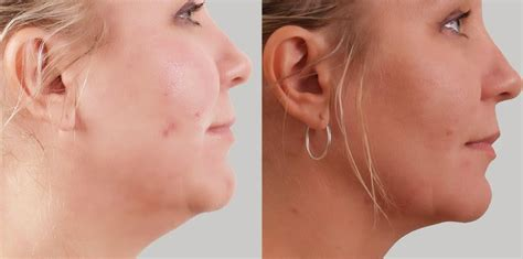 what are jowls causes prevention how to get rid of them image gallery sagging jowls