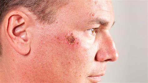 acne scars on face treatment new study shows moisturizers can prevent and treat scars