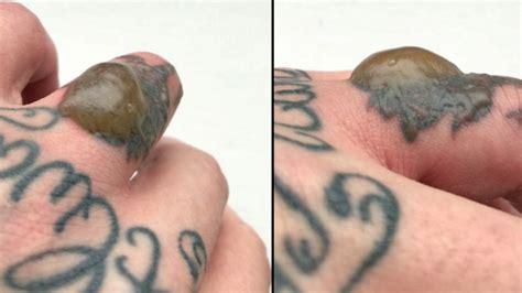 tattoo removal blister care develops disgusting blister on finger after laser