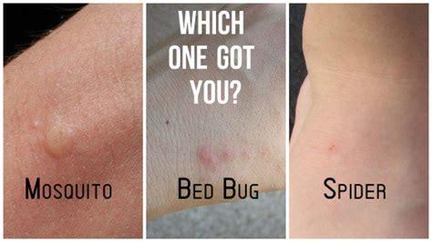 mosquito  spider bites  bed bug bites healdove