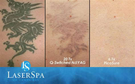 laser tattoo removal results laser removal laserspa of ta bay