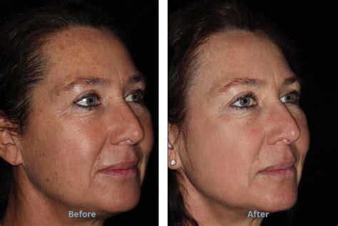 ablative laser resurfacing skin resurfacing laser lumenis lumenis 174 resurfx treatment