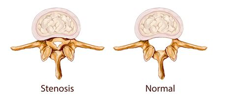 spinal stenosis diagram spinal stenosis overview symptoms and treatment trans1