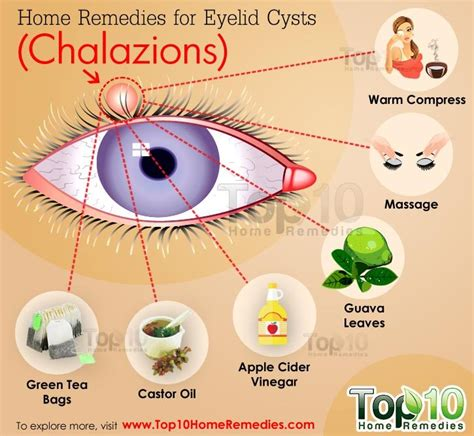 home remedies for eyelid cysts chalazions top 10 home