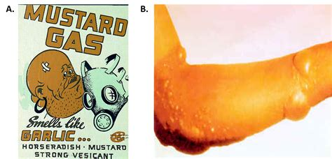 Mustard Gas Mustard Gas Images Search