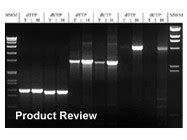 Expand High Fidelity Plus Pcr System From Roche Applied Science Biocompare Product Review Expand Template Pcr System Roche