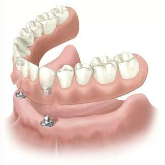 protesi dentarie mobili prezzi protesi dentali a rimini centro dentale diamante
