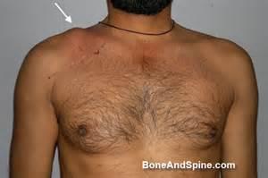 Http boneandspine com wp content uploads 2012 04 deformity clavicle